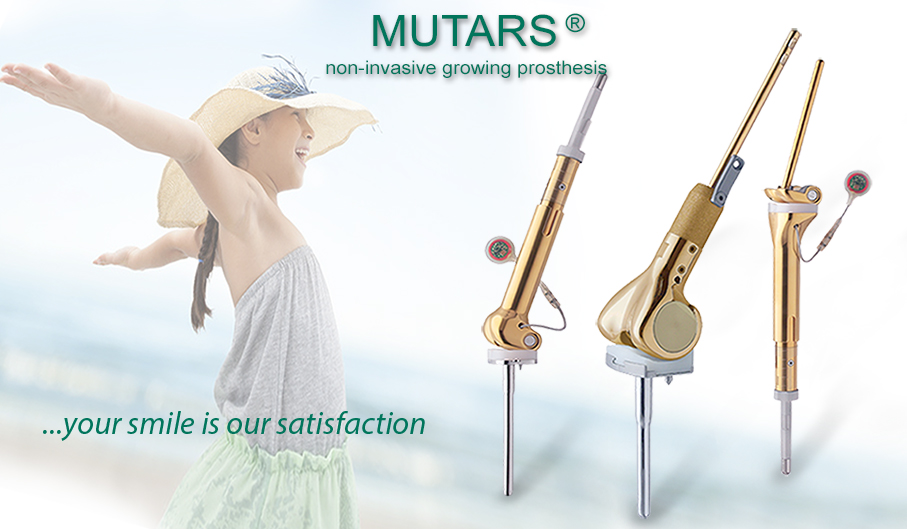 MUTARS Growing Prostheses